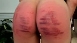 Severe Caning Results, LIly