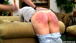 Spanked on a bruised bottom
